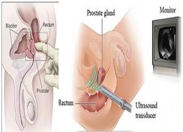 Mit kell kezelni prosztatagyulladással