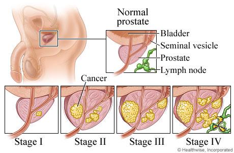 lump on prostate